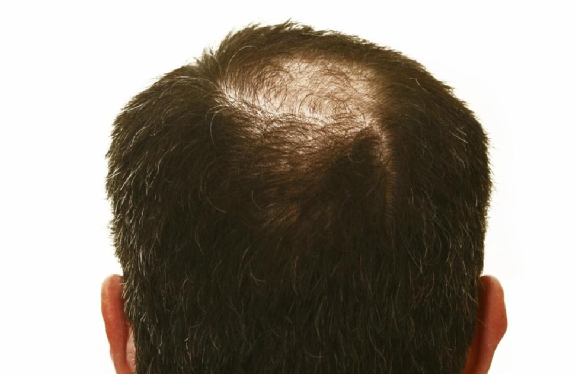 Hair Restoration - The Man Clinic - testosterone replacement therapy - Ageless Men's Health Anti Aging Clinic - Santa Monica - Men's Anti Aging Clinic