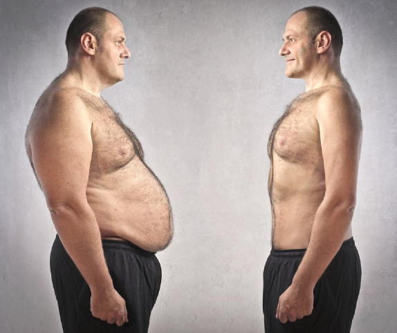 weight loss - the man clinic- anti aging clinic - ageless men's health - santa monica